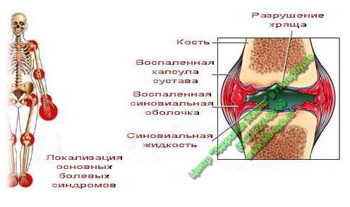 Операция на связки плечевого сустав
