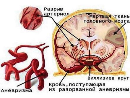 Схема поражения при инсульте