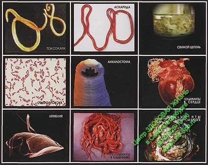 паразиты в организме человека видео